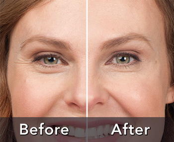Cumming cosmetic dentist offers botox and dermal fillers botox dermal fillers solutioingenieria Gallery