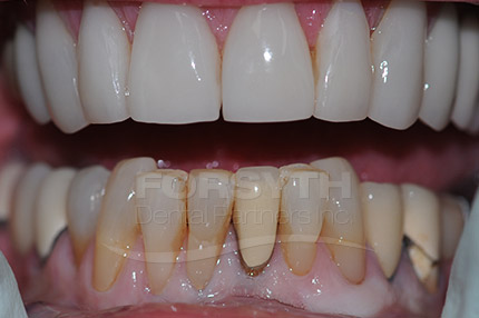 Lower Anterior Veneer Before