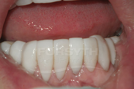 Lower Anterior Veneer After